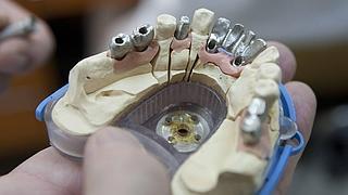 Prótesis dentales sin vigilancia
